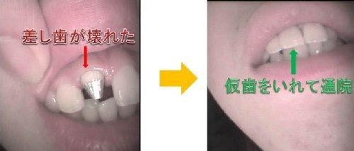 仮歯p500