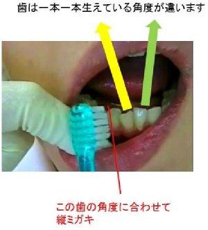 periodontal03
