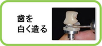 保険診療、保険外診療を含め、歯を白く造る治療方法を紹介しています