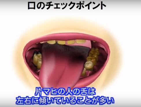 口のチェックポイント